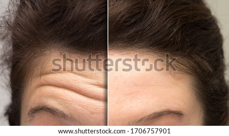 face of a woman before and after a cosmetic treatment to smooth expression lines. Concept of anti-aging and rejuvenation cosmetics on forehead wrinkles Stock photo ©