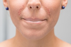 Face of a young woman with irritation due to the use of the mask. Excoriation and pimples due to rubbing of the protective mask. Concept of dermatology and skin problems