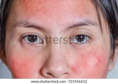 Facial skin irritations