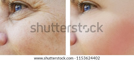 face woman wrinkles eyes before and after procedures, pigmentation