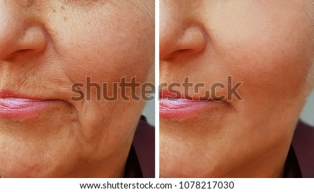 face wrinkle on old woman