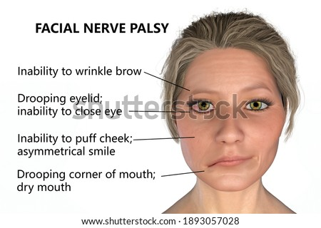 Facial nerve paralysis, Bell's palsy, 3D illustration showing female with one-sided facial nerve paralysis Stock photo ©