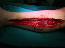 fasciotomy at leg due to  circumferential second degree burn and present of  compartmental syndrome .