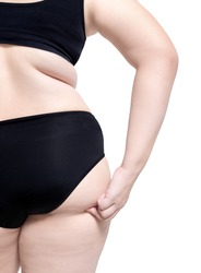 fat woman turn back show obesity body cellulite plastic surgery liposuction concept