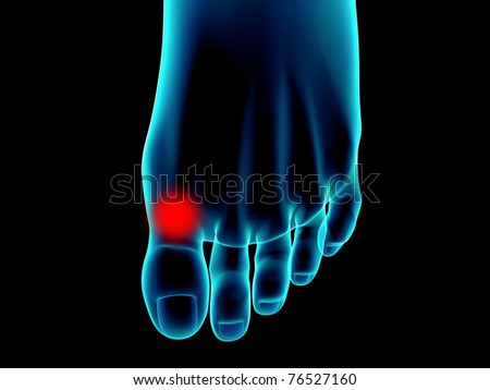 feet of woman x-rays - stock photo