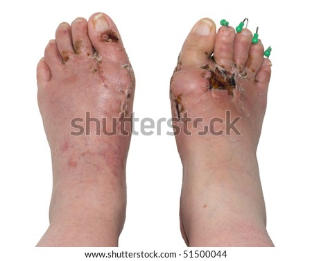 Feet showing post operative result of surgery for the condition hallux valgus, popularly known as Bunion. Right foot also has orthopedic pins inserted to correct the position of the lesser toes.