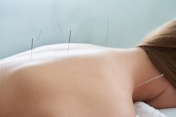 Female back with needles on the acupuncture treatment therapy in spa salon. Alternative Medicine concept
