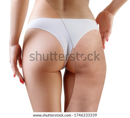 Female before and after cellulitis treatment. Isolated on white background. Foto stock ©