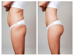 Free liposuction Stock Photos - Stockvault net