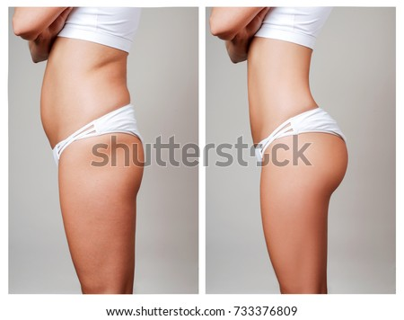 Female body before and after liposuction. Plastic surgery concept.