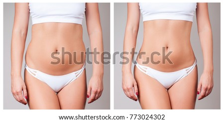 Female body before and after liposuction. Plastic surgery concept. Photo stock ©