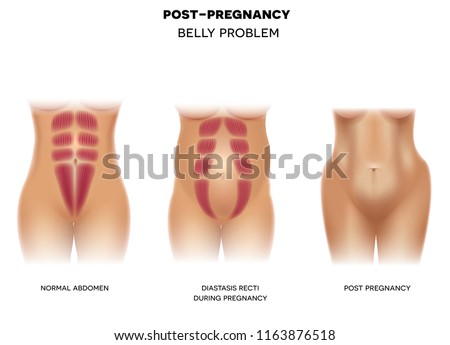 Female body before pregnancy with normal muscles, Diastasis recti during pregnancy and body postpartum colorful illustration on a white background Stock photo ©
