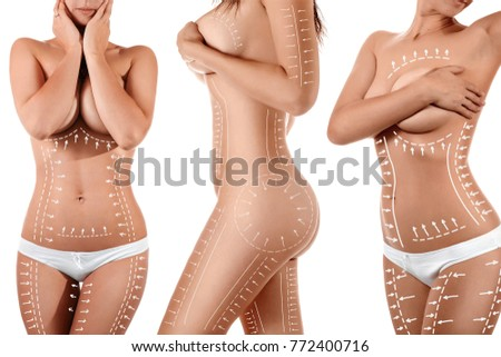 Female body with patterned lines and arrows on it, isolated on white. The concept of plastic surgery, fat removal, liposuction and cellulite. Photo stock ©