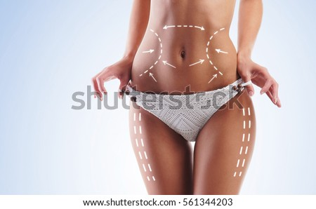 Female body with the drawing arrows on it. Fat lose, liposuction and cellulite removal concept. #561344203