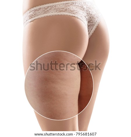 Female buttocks before and after cellulite treatment. Foto stock ©