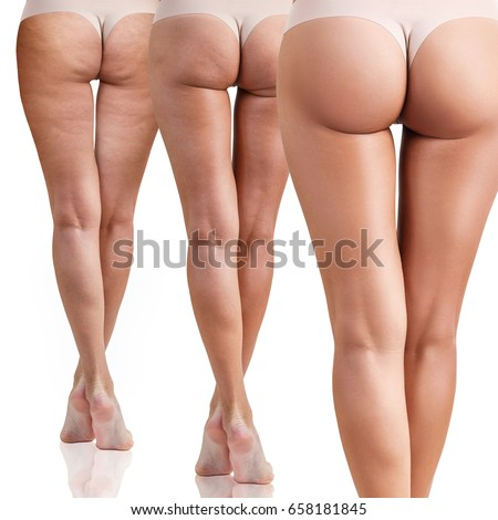 Female buttocks before and after cellulitis. Foto stock ©