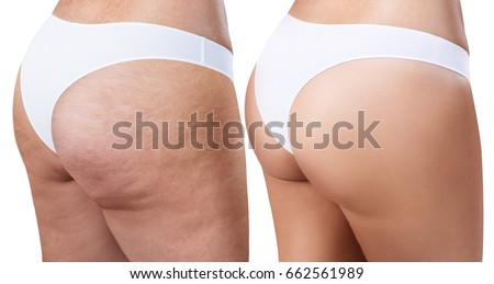 Female buttocks before and after treatment. Сток-фото ©