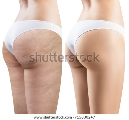Female buttocks before and after treatment. Foto stock ©