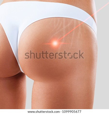 Female buttocks with laser ray removes stretchmarks.