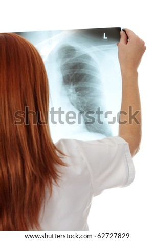 Female doctor examining a chest x-ray photo scan. Isolated on white