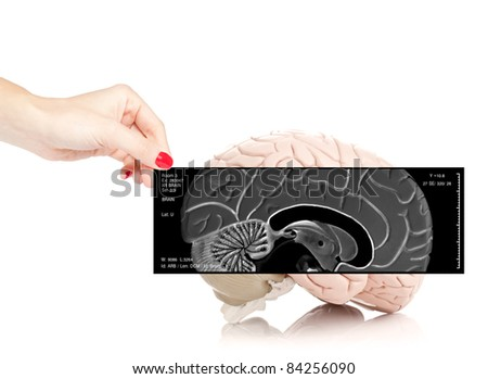 Female doctor holding an x-ray of the brain in front of a human brain model isolated on white background