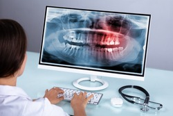 Female Doctor Looking At Teeth X-ray On Computer Over Desk In Clinic