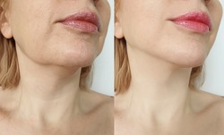 female double chin   after correction