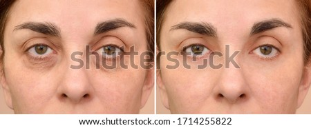 Female eye bags before and after cosmetic treatment or plastic procedure, blepharoplasty. Close-up. Stock photo ©