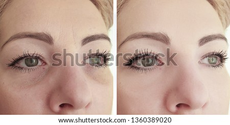 female eye wrinkles   after cosmetology procedures
