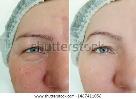 female eye wrinkles   after treatment