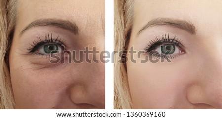 female eye wrinkles   after treatments