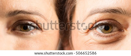 Female eyes with and without wrinkles