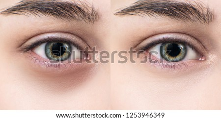 Female eyes with bruises under eyes before and after cosmetic treatment. #1253946349