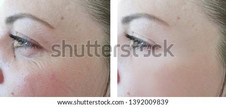 female eyes wrinkles   after correction procedures