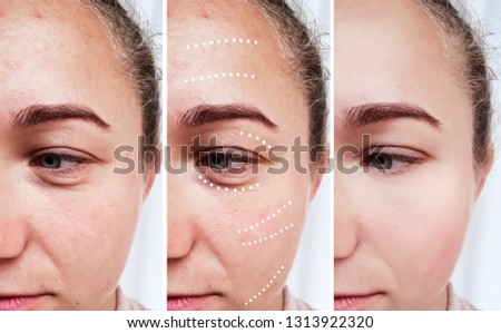 female eyes wrinkles before and after treatments