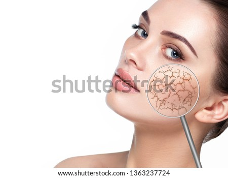 Female face showing dry facial skin using magnify glass. Cracked dry skin without moistening