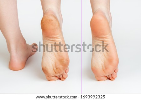 Female feet with corns and calluses and without them, on a white background. Foot close-up. Cosmetology and medicine. Before and after concept ストックフォト ©