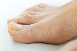 female foot with flaky skin. leg skin during acid peeling cosmetic procedures