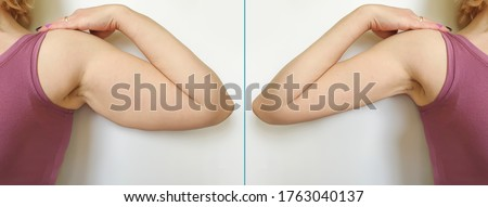 female hand   after losing weight Foto d'archivio ©