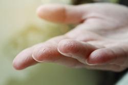Female hands close up, dry skin, winter skin care