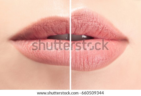 Female lips before and after augmentation procedure. Beauty concept Foto stock ©