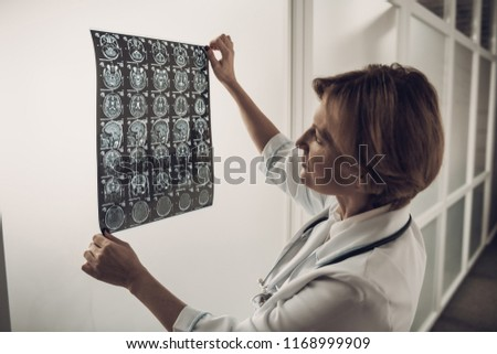 Female Neurosurgeon Looking at Roentgen Scan of Brain.Close-up Attentive Clever Distinguished Expert Carefully Analizing Brain Roentgen Scans while Holding Them. Neurosurgery Concept