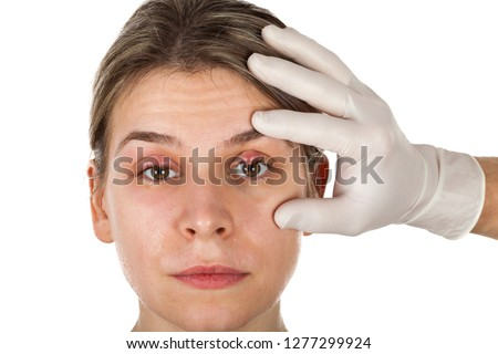 Female patients ophthalmic infection. Hordeolum on upper eyelid, shown by doctor wearing aseptic white gloves. Staphylococcus