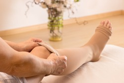 Female puts some anti-thrombotic stockings on