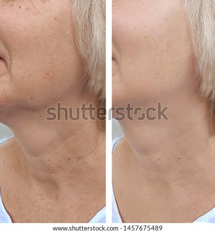 female wrinkles   after correction therapy