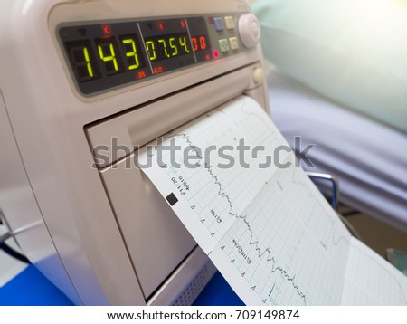 Fetal monitor or non stress test printing the baby's heart beats or electrocardiograph and mother uterine contraction during delivery or birth in delivery or labor room at hospital Stock photo ©