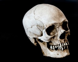 Fiberglass human skull facing 45 degrees right with a black background