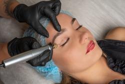 Fibroblast, plasmalifting procedure womens eyelid wrinkles lifting