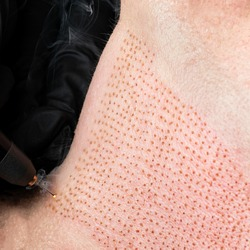 Fibroblast, plasmalifting procedure womens neck wrinkles lifting