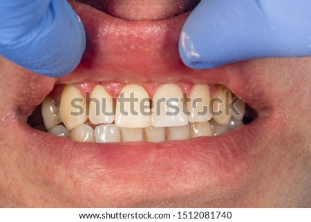 filling of human teeth, close-up. Treatment with polymer fillings at dentist's appointment #1512081740